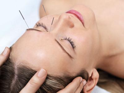 Frau während Akupunkturtherapie