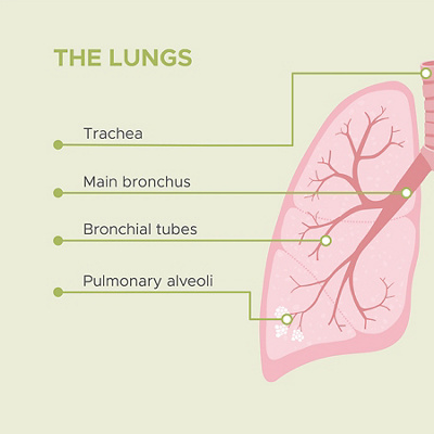 Infographic cours of a lung inflamation 1