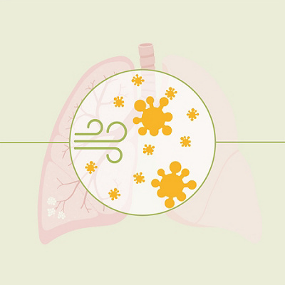 Infographic cours of a lung inflamation 6